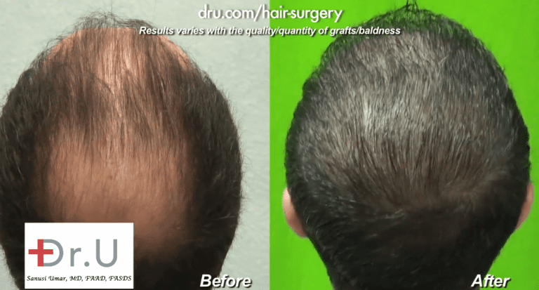 The Dr.UGraft's thinning hair transplant results shown in the crown and top of the scalp