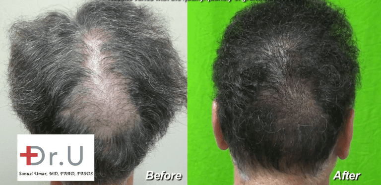 Beard hair grafts fill in crown slot from scalp reduction to produce seamless looking results