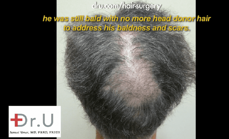 Additional donor resources are needed to fill in crown slot from scalp reduction