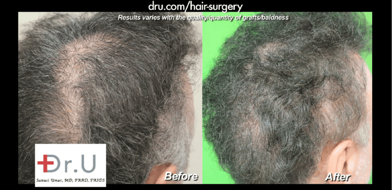 Pasadena patient before and after his Dr.UGraft scalp reduction repair