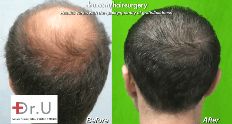Image of the patient's crown hair transplant before and after