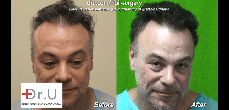 This patient finally found an ideal means to repair a crown slot from scalp reduction surgery which gave him a very natural looking outcome in the end