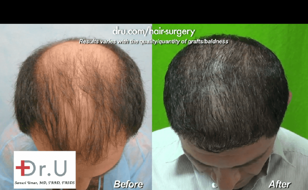 Before and after photos of thinning hair transplant results shown on patient's top scalp