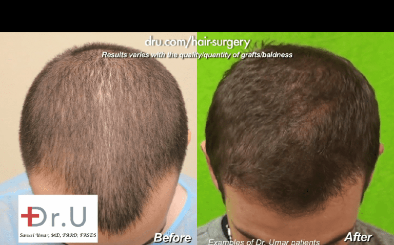 Final hair transplant results will not happen right away. Patients will need to undergo various stages of hair transplant growth before they reach their final outcome