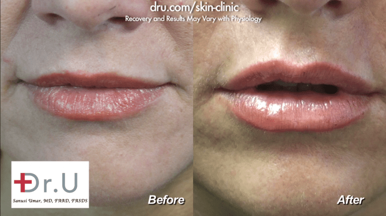 Patients often ask, how long do injectable fillers last? The answer often depends on the area that is injected and the individual's metabolism