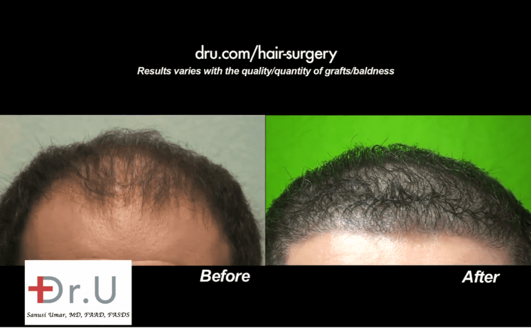 Beverly Hills patient was able to achieve an aggressive low hairline after his Dr.UGraft procedure