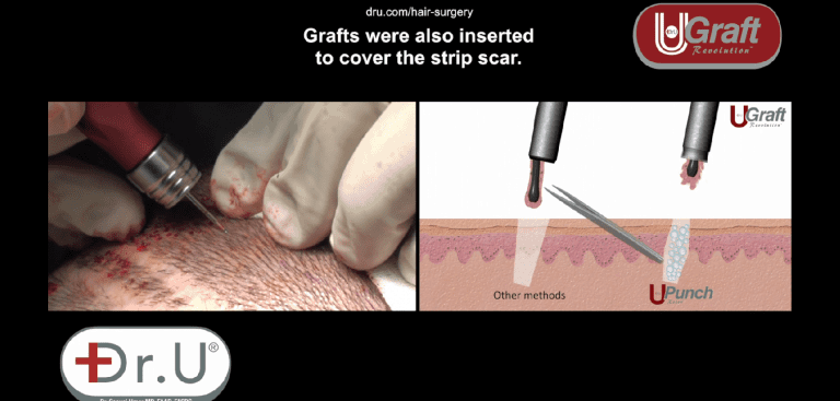 Dr.UGraft™ flushes out grafts with fluid instead of relying on metal forceps to retrieve impacted grafts. This prevents mechanical injuries.