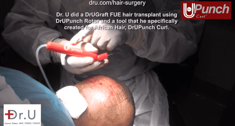 Dr. Umar performs a traction alopecia treatment on Santa Monica patient, using his device the Dr.UPunch Curl