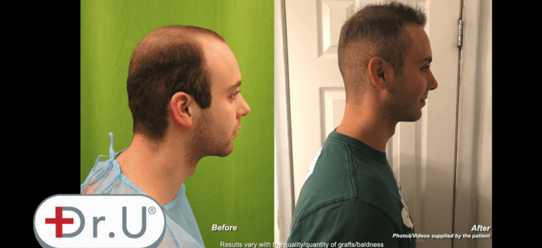Before and after images depicting new temples, a conservative hairline and crown coverage due to the patient's Dr.UGraft™ hair transplant at age 23