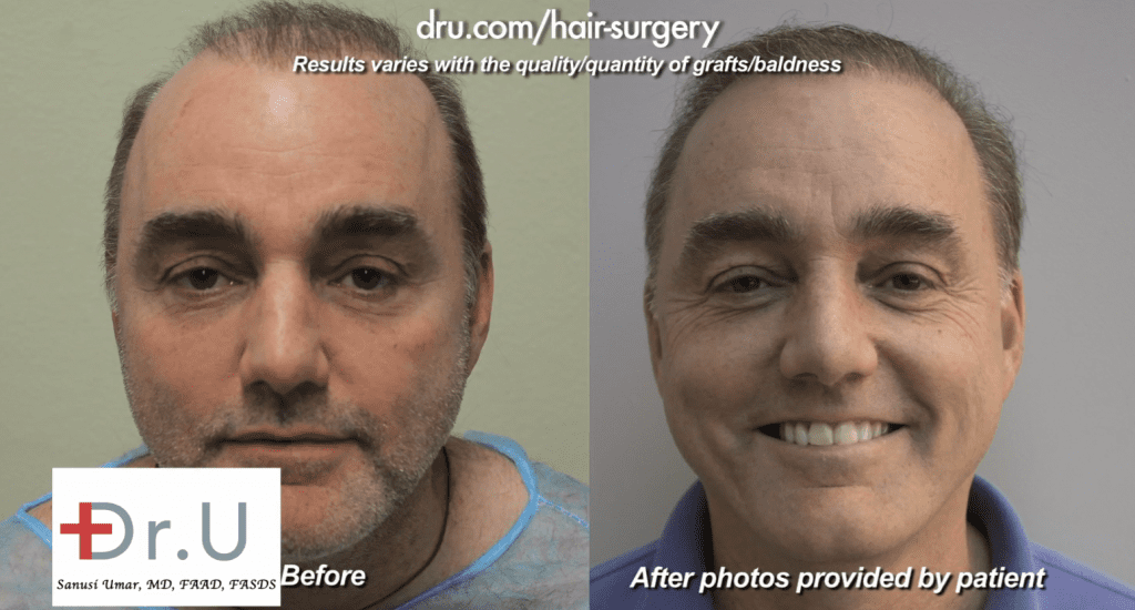 80's Pluggy Doll's Hair Repaired With Dr.UGraft