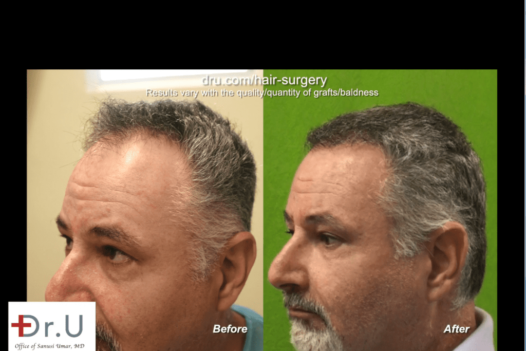 Conservative Hair Transplant for Mature Hairline