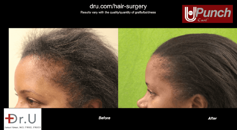 Image of black female hair transplant before and after her edges restoration surgery with the Dr.UPunch Curl.