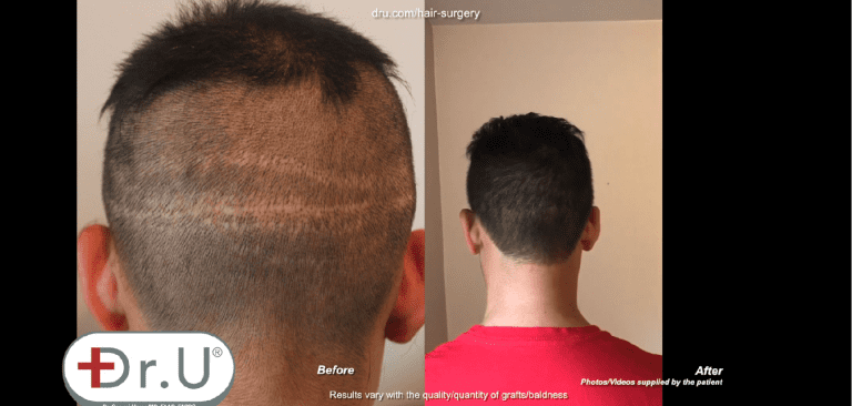 Venice Beach patient before and after his Dr.UGraft™ hair transplant scar cover up. He is now able to wear the clean, short hairstyle that flatters his appearance