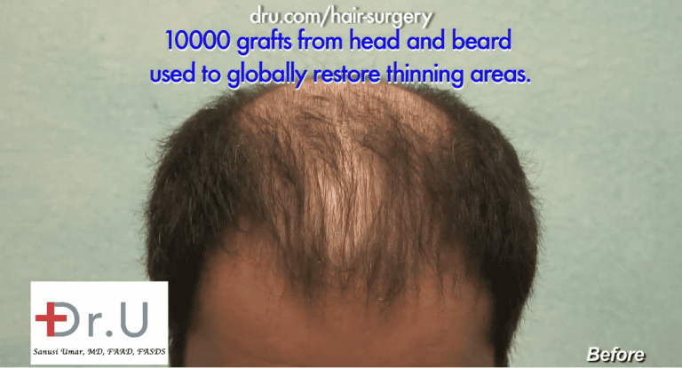 Top part of scalp shows severe thinning instead of complete hair loss