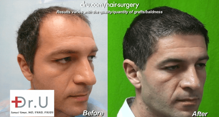 The addition of beard hair to this patient's donor pool helped him regain a younger looking appearance