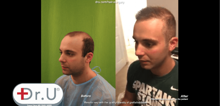 Patient defies the minimum age for a hair transplant thanks to his Dr.UGraft ™ body hair to head surgery
