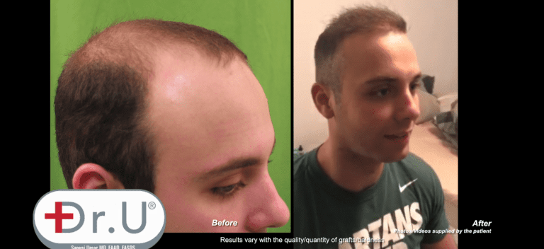 Profile view of Manhattan Beach patient who achieved the results he wanted from his early 20's hair transplant