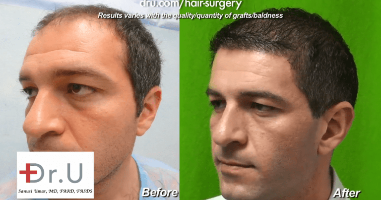 With a 10,000 grafts hair transplant, this patient achieved amazing coverage and a youthful low hairline