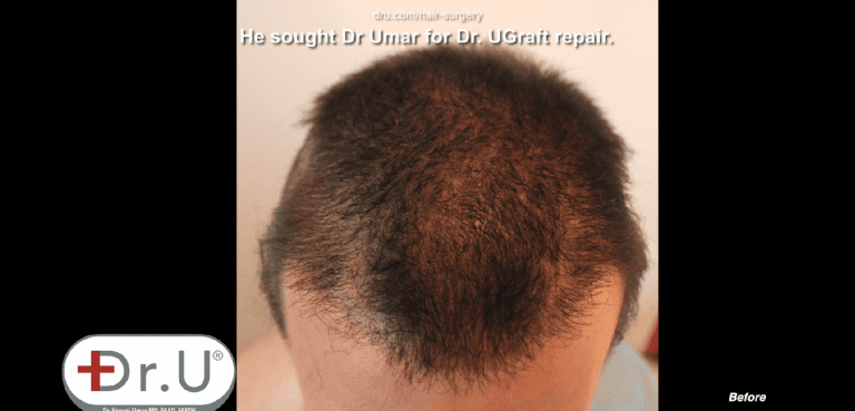 Patient hope to undo hair transplant results on the top of his head