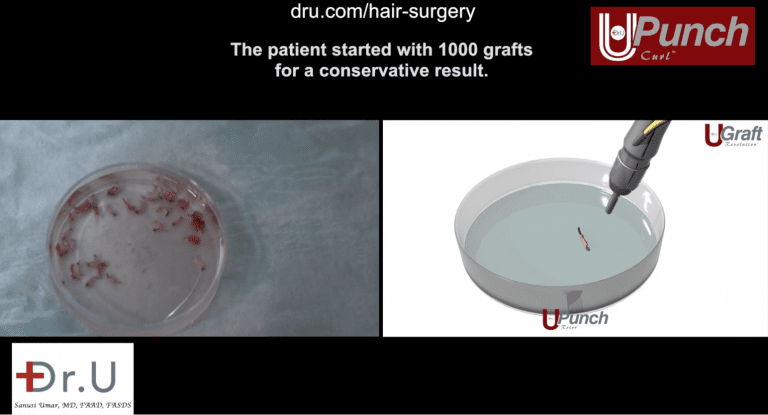 The Dr. UPunch Curl can be attached to a fluid irrigation system to produce healthier, hydrated grafts. This increases the likelihood of traction alopecia regrowth following a Dr.UGraft restoration procedure.
