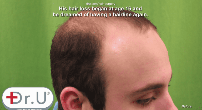 Profile view showing empty temples before his Dr.UGraft™early 20's hair transplant procedure