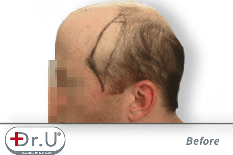 Advancement of the temples marked on the patient's scalp. This is a necessary aspect of his hair transplant and hairpiece combination