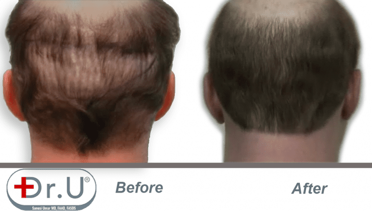 Before and after view of scalp donor area which was repaired with body hair grafts. Filling in this area was one of the goals of the patient's hair transplant repair for hairpiece integration.