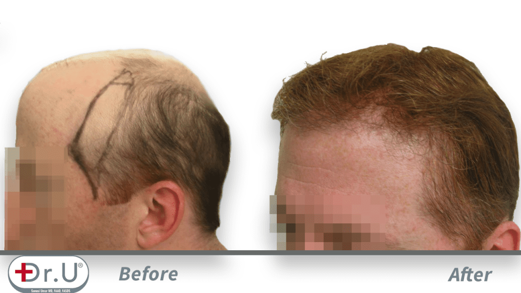 Redondo Beach patient depicted from the side, before and after his Dr.UGraft hair transplant repair for hairpiece integration.