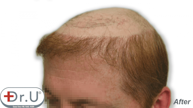 Many men are interested in a combination of hair transplant and hairpiece to achieve the coverage they want. This photo shows a three-quarters facial view showing the patient's hairline temples created for his hairpiece.