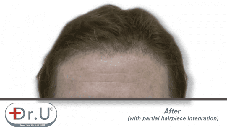 Final results showing patient's partial hairpiece integration with the hairline and temples created during his Dr.UGraft procedure.