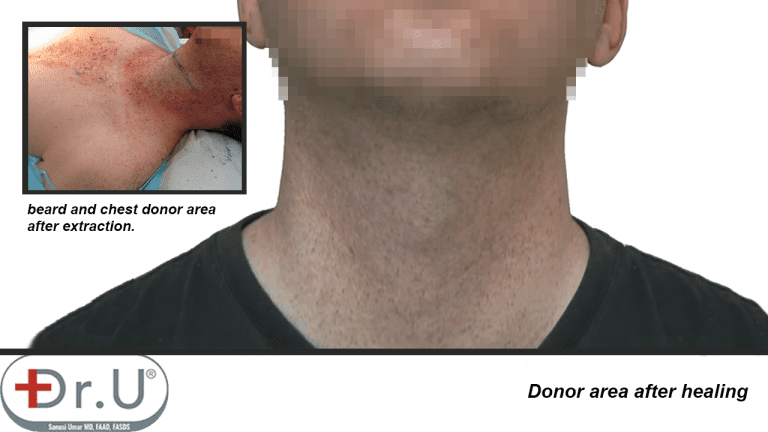 Beard region on patient's face and neck healed without noticeable signs of redness or scarring, following his hair transplant and hairpiece combination surgery using Dr.UGraft technology.