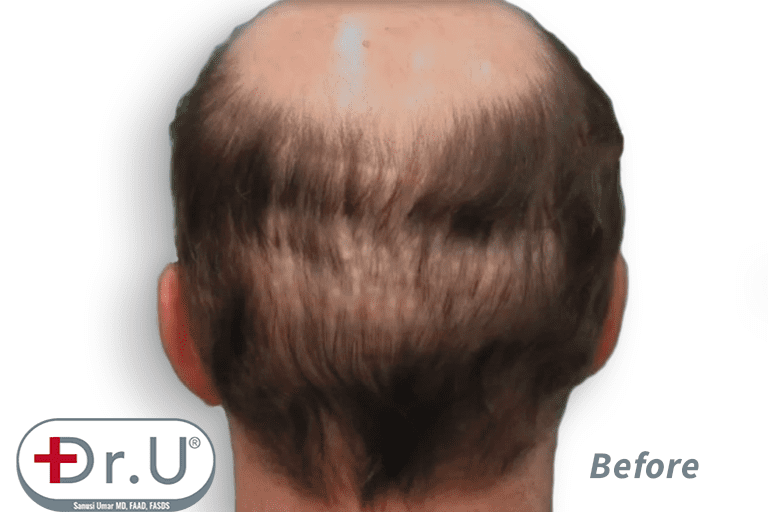Patient hopes for a hair transplant and hairpiece combination result, as well as to fill in the depleted donor area on the back of his head