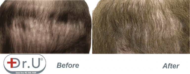 Close up view showing final results of repair where body hair grafts were used to fill in the patient's depleted donor region on his scalp.