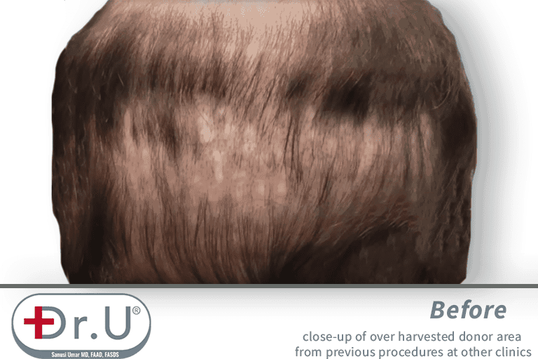 Failed growth and an exhausted donor area forced the patient to correct the situation using a partial hairpiece