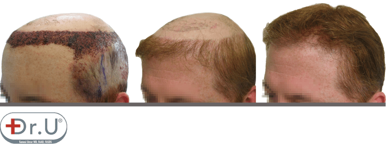 Progression of results for hair transplant and hair piece combination. On the left is the recipient area directly after hair transplant. In the middle is the full result of the hairline and temple reconstruction. On the right is the full result of the procedure, with the patient's hairpiece of choice.