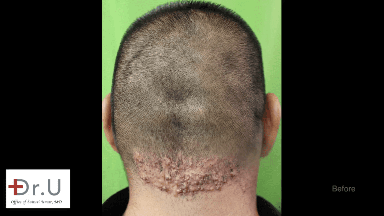 The Walnut Park patient sought a cure for chronic razor bumps behind head after previous treatments at other clinics had failed.