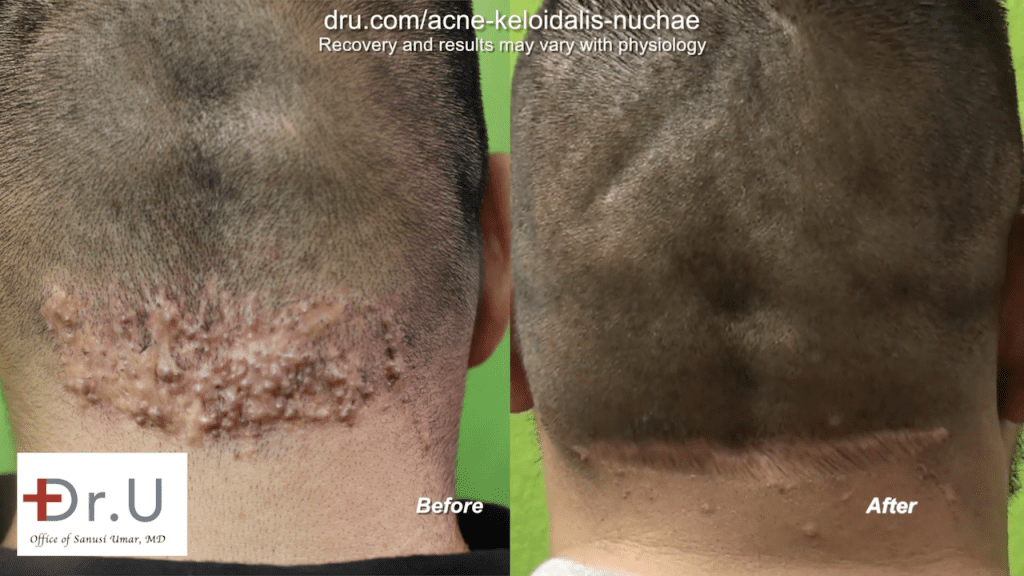 This patient finally found a cure for razor bumps behind head with Dr. U in Los Angeles. Dr. U's unique surgical excision technique helped return this patient to his normal cosmetic appearance.