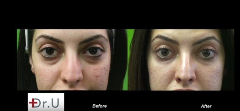 The best dermal filler injection for under the eyes will produce a natural looking outcome without incurring the Tyndall effect