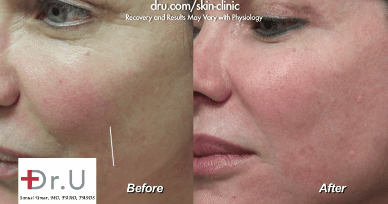 Determining which dermal filler is best often depends on the challenge that needs to be addressed. For this Los Angeles patient, Belotero was the best option to fill her fine line on the cheek