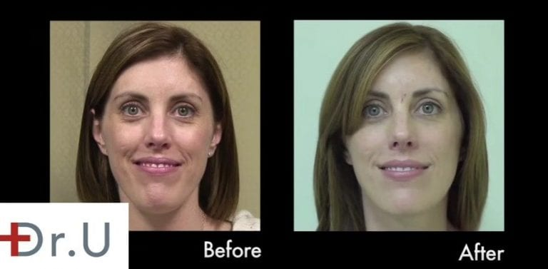 Hyaluronic acid fillers may be the best dermal filler injection for the early onset of laugh lines (nasolabial folds)