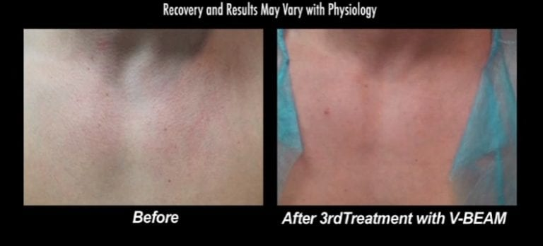 Before and after images show patient's chest after his third and final treatment with the Vbeam laser treatment for Rosacea