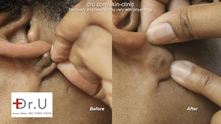 A keloid in an earlobe piercing may be effectively removed through flap excision surgery. Here are before and after photos of this patient's procedure.