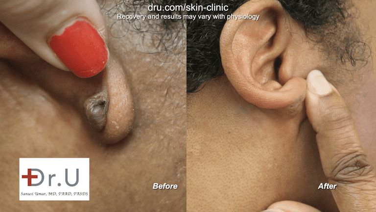 The large hard lump on the earlobe from keloid formation is no longer present