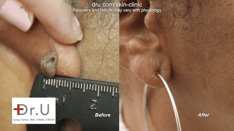 Brentwood patient is now able to wear her favorite earrings after her earlobe keloid removal surgery performed by Dr.U