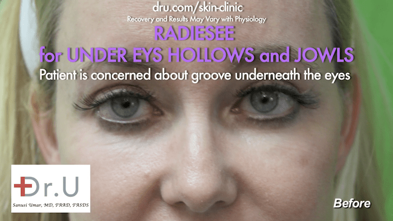 In addition to wanting to know how to get rid of jowls , the Manhattan Beach patient was also concerned about the hollows underneath her eyes, so Dr. U recommended Radiesse as an under eye hollows filler