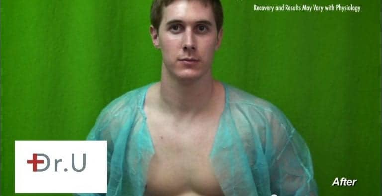 Vbeam proved to be the best Rosacea treatment for this Manhattan Beach patient's chest redness
