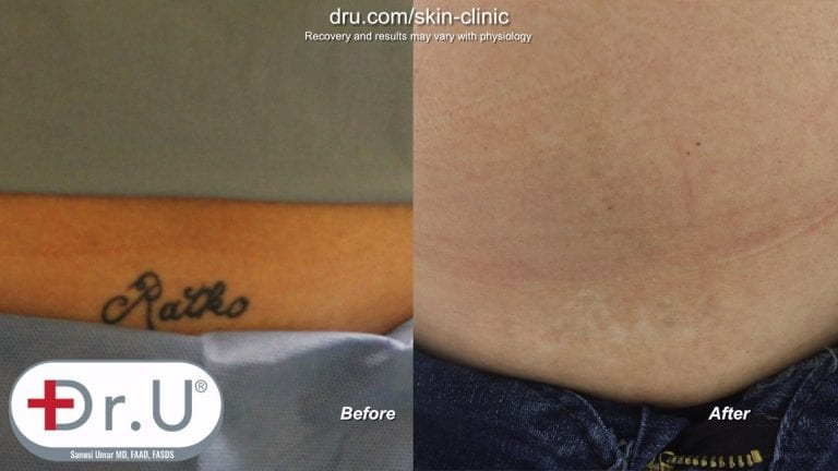 The Manhattan Beach patient was pleased with the results of her laser tattoo removal before and after her final session.