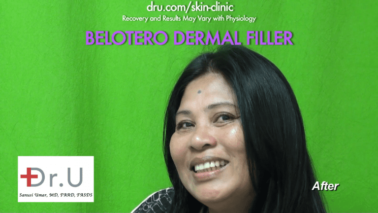 The Belotero dermal filler successfully eliminated the fine wrinkle wrinkles know as 11 between the eyes *