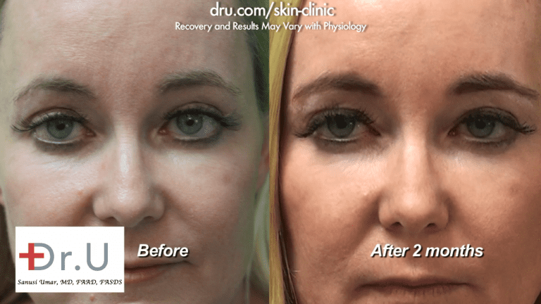 Successful treatment with dermal fillers for under eye bags before and after as seen on the Manhattan Beach patient at the Dr. U Skin Clinic