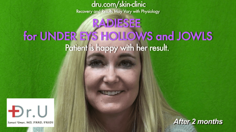 The Manhattan Beach patient was satisfied with the jowl lift with fillers and under eye hollows filler at Dr. U's Los Angeles based clinic*